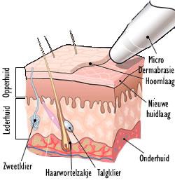 microdermbrasie-huid